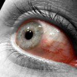 épisclérite, inflammation d'une membrane interne de l'oeil.