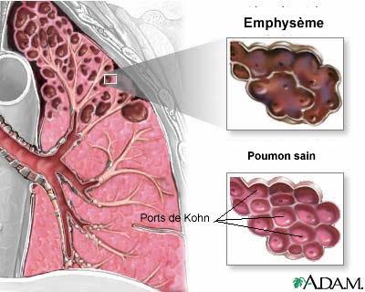 Emphysème pulmonaire et homéopathie uniciste